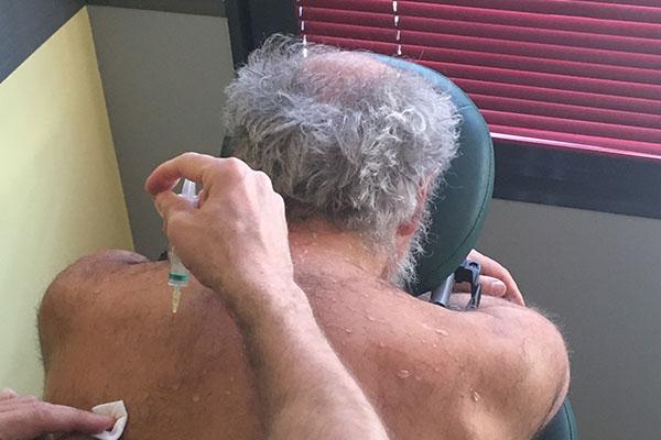Soins des douleurs du dos par mésothérapie à Limas, Rhône